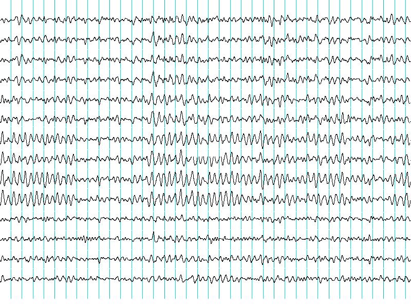 Nagrania fal mózgowych z Elektroencefalografu