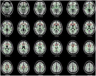 Zmiany w mózgie. Źródło: Lin & Zhou et al, 2012